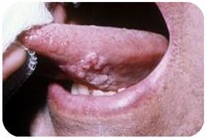 سرطان دهان ، سرطان زبان ، گوشی هوشمند ، تلفن هوشمند ، بطاقة ائتمان ، سرطان الفم