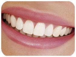 جانشین خمیر دندان ، جانشین نخ دندان ، آنزیم جلبکی ، آنزیم جلبکی و رفع پوسیدگی دندان ، سایت رسمی مجید اخشابی ، दांतों, बेहतर, समुद्री शैवाल, जीवाणु, सड़न, रोकेगा