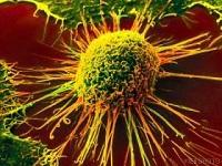 ۶ علامت هشدار برای سرطان